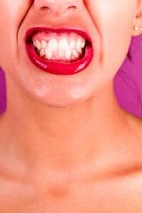 Pas på tænderne, når du giver oralsex